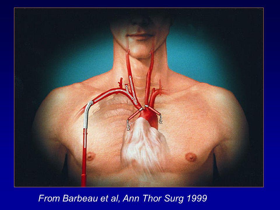 From Barbeau et al, Ann Thor Surg 1999