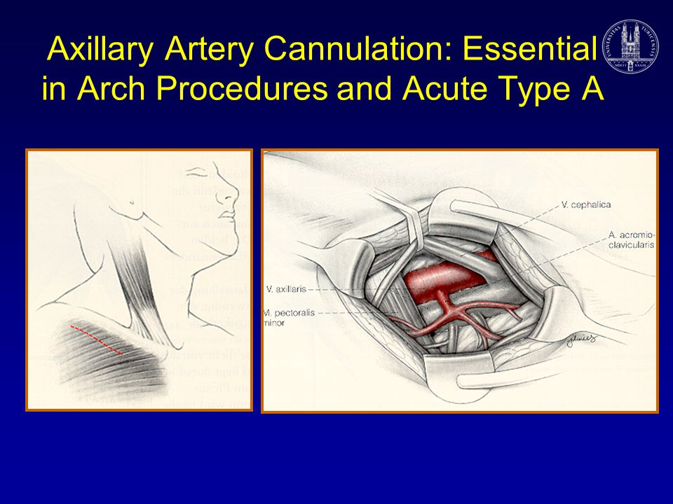 Axillary Artery Cannulation: Essential in Arch Procedures and Acute Type A
