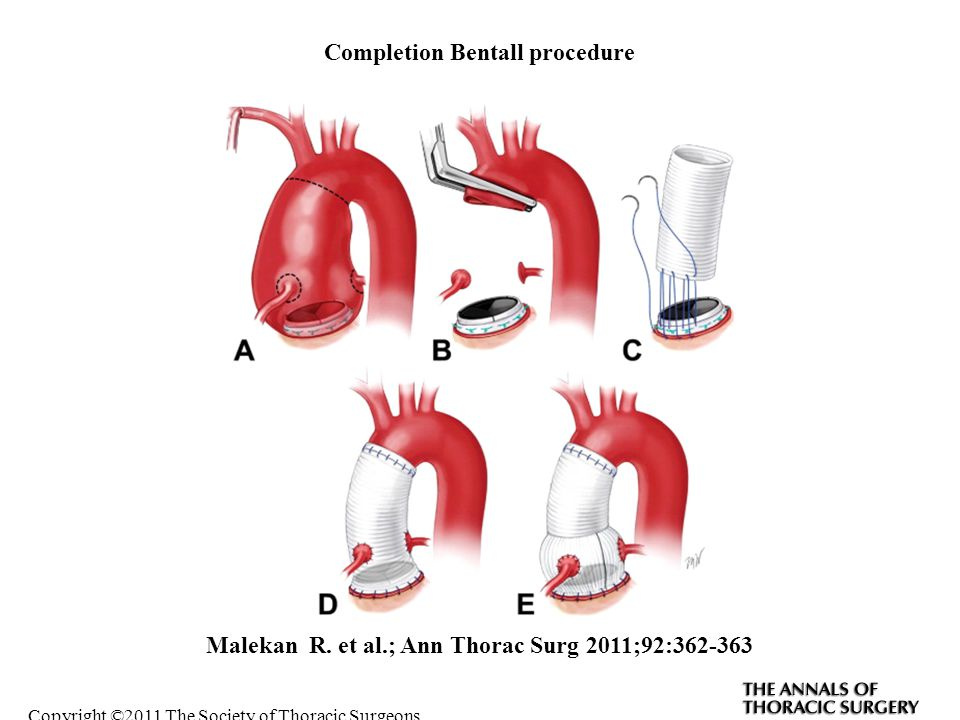Completion Bentall procedure