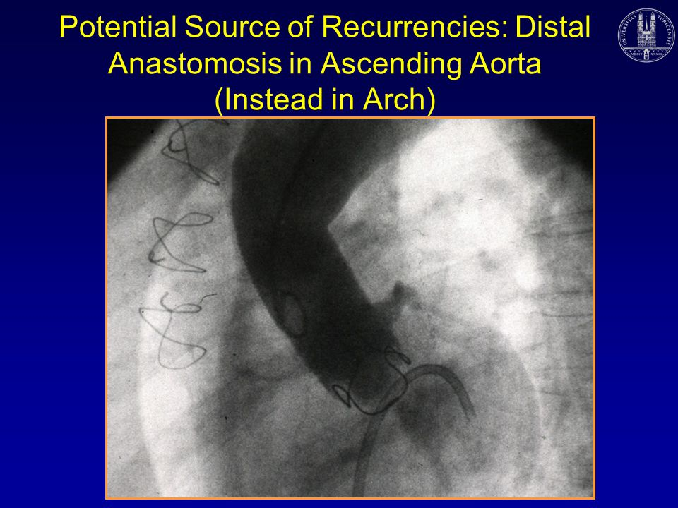 Potential Source of Recurrencies: Distal Anastomosis in Ascending Aorta (Instead in Arch)