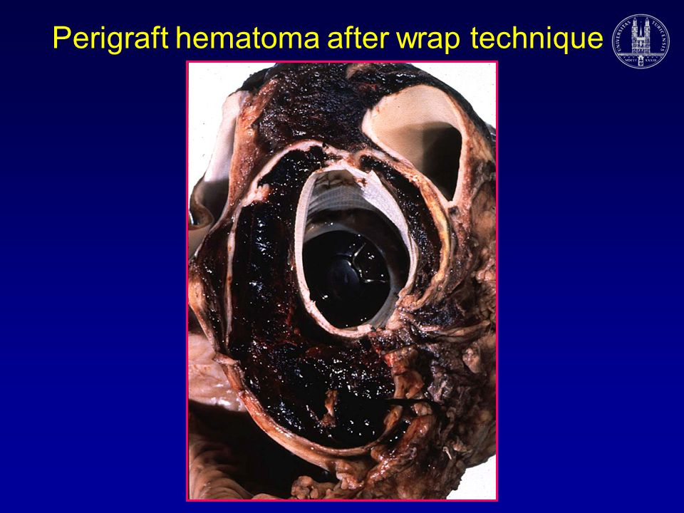 Perigraft hematoma after wrap technique