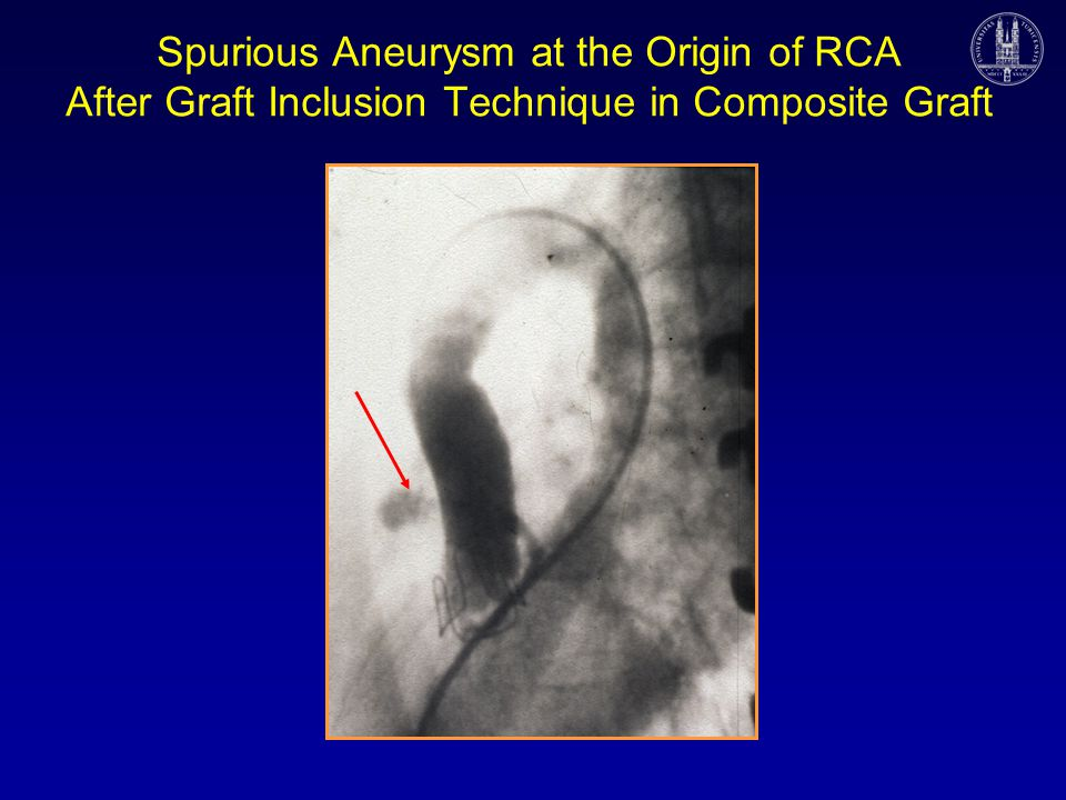 Spurious Aneurysm at the Origin of RCA After Graft Inclusion Technique in Composite Graft