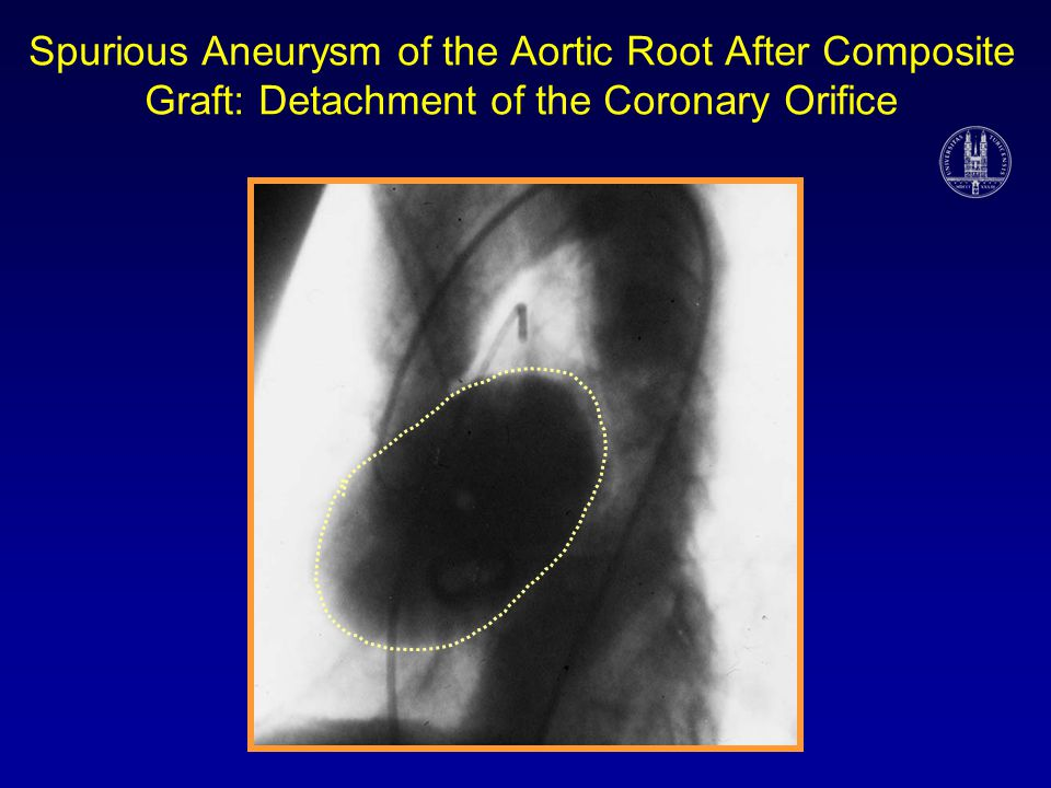 Spurious Aneurysm of the Aortic Root After Composite Graft: Detachment of the Coronary Orifice
