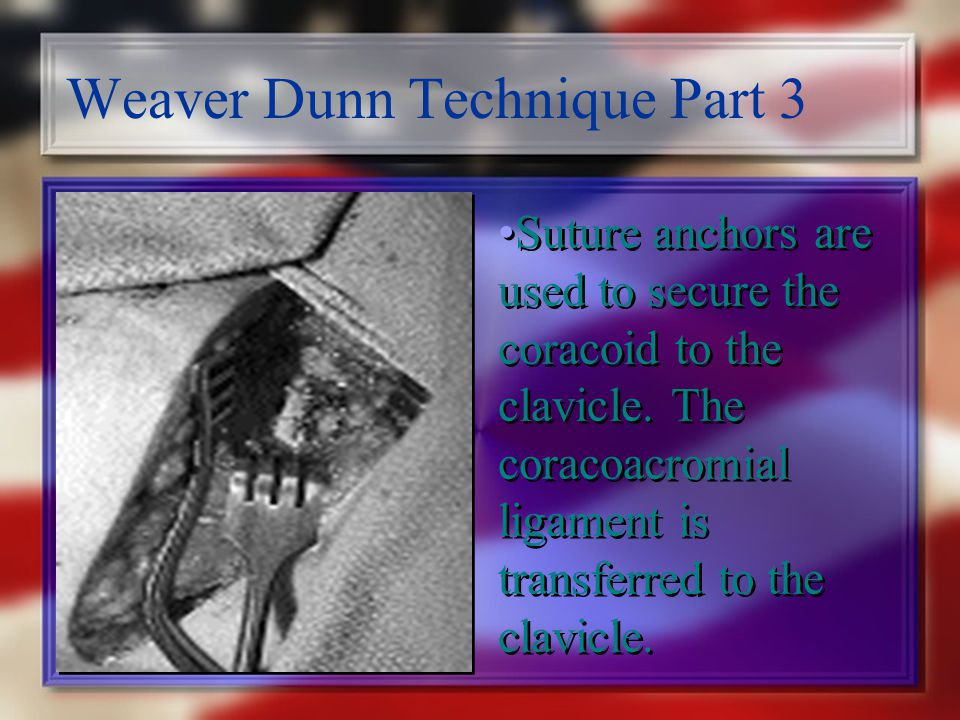 Weaver Dunn Technique Part 3