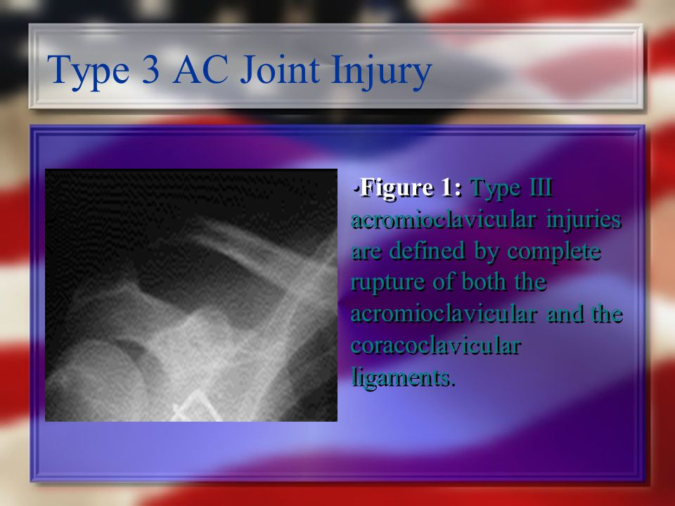 Type 3 AC Joint Injury