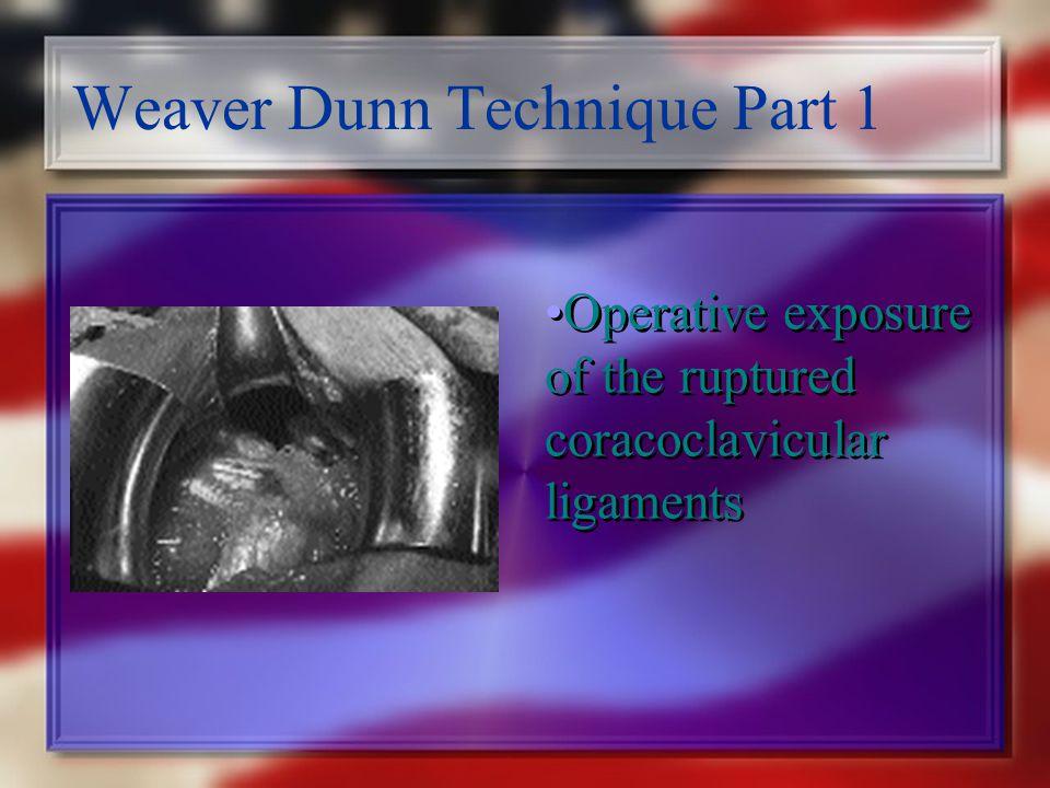 Weaver Dunn Technique Part 1