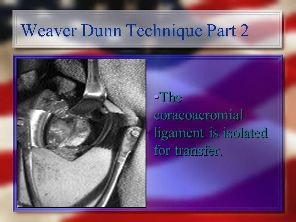 Weaver Dunn Technique Part 2
