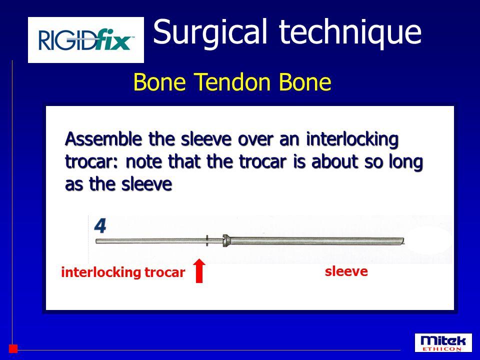 Surgical technique Bone Tendon Bone