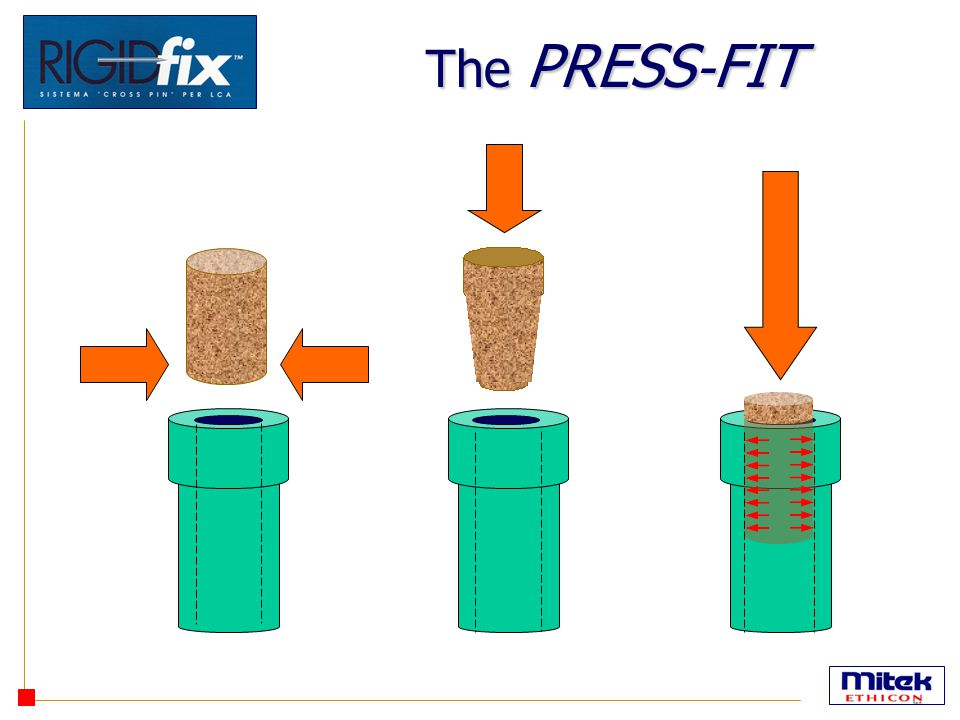 The PRESS-FIT