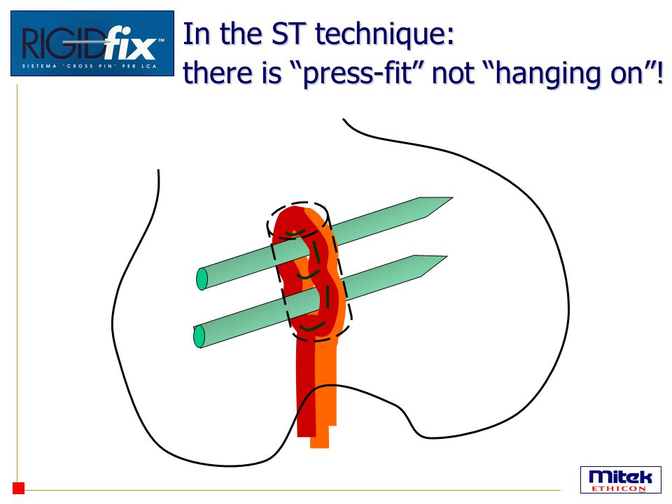 In the ST technique: there is press-fit not hanging on !