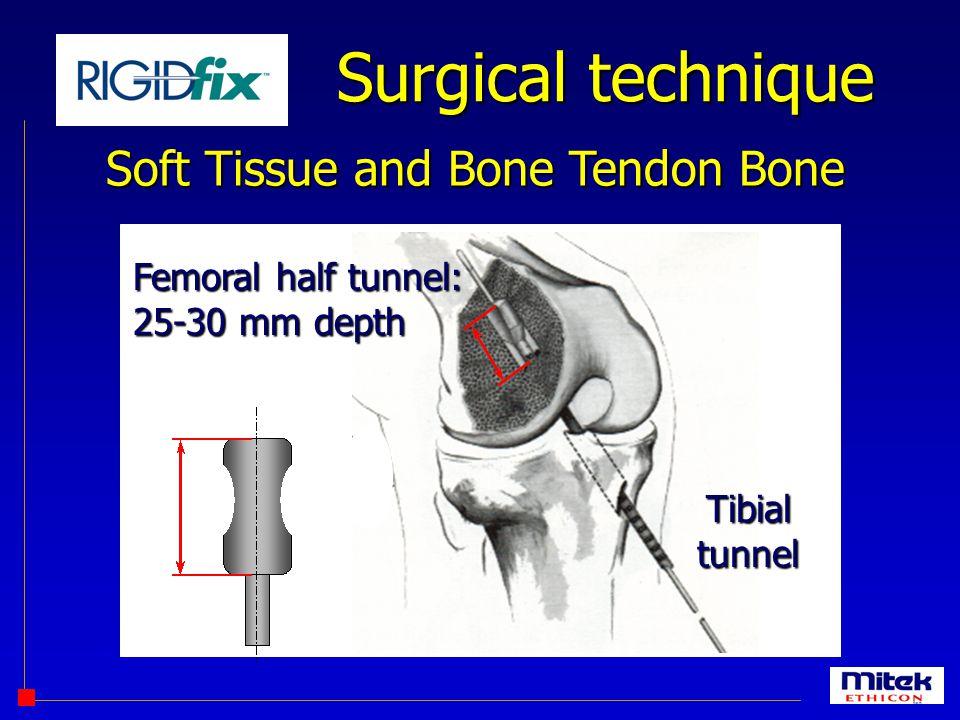 Surgical technique Soft Tissue and Bone Tendon Bone