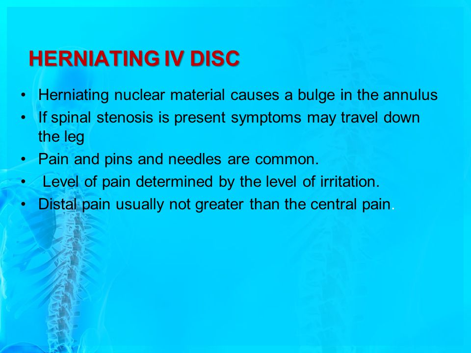 HERNIATING IV DISC Herniating nuclear material causes a bulge in the annulus. If spinal stenosis is present symptoms may travel down the leg.