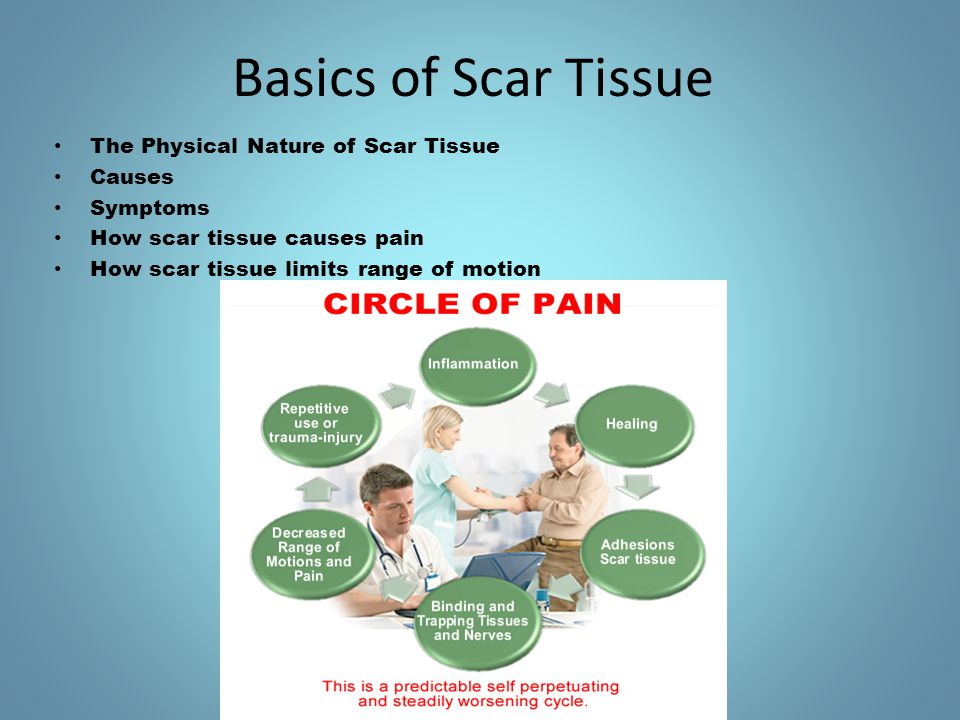 Basics of Scar Tissue The Physical Nature of Scar Tissue Causes