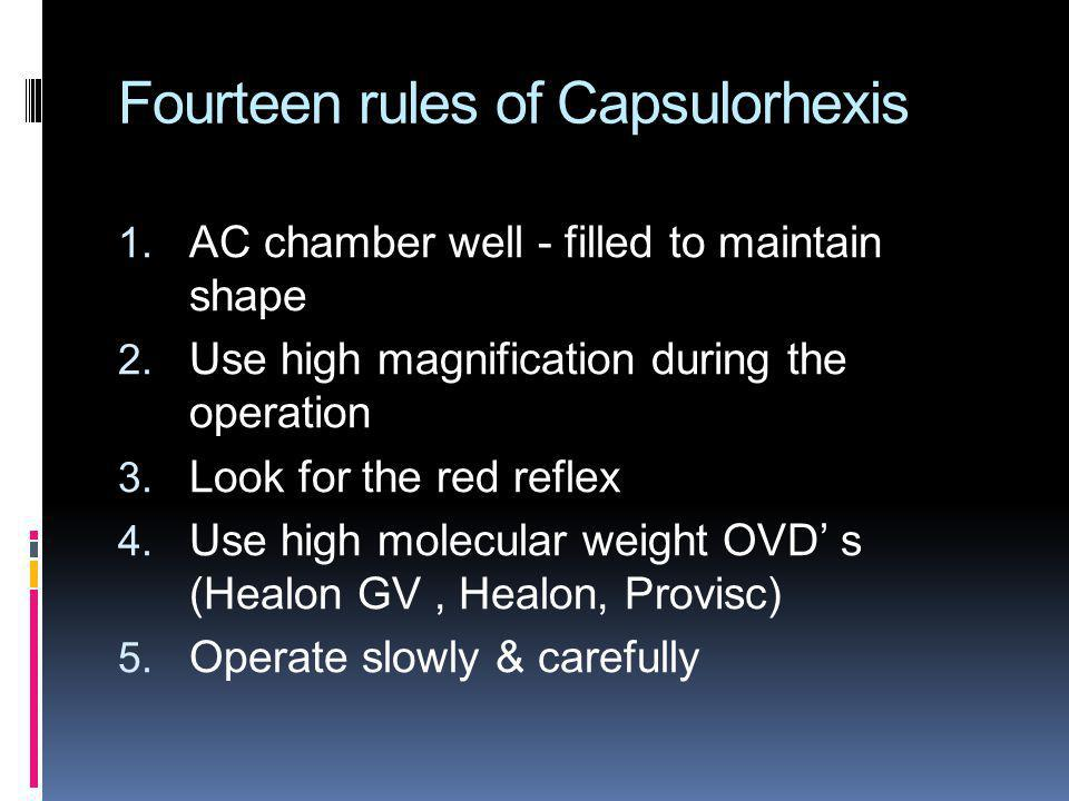 Fourteen rules of Capsulorhexis