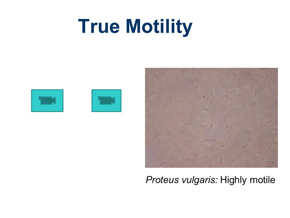 True Motility Proteus vulgaris: Highly motile