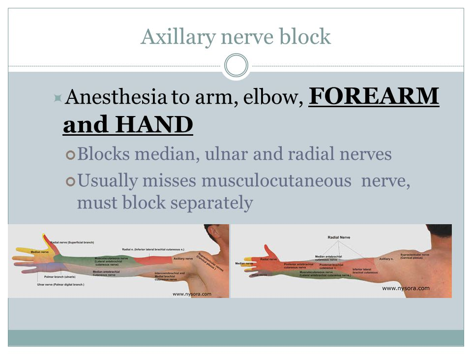 Axillary nerve block Anesthesia to arm, elbow, FOREARM and HAND