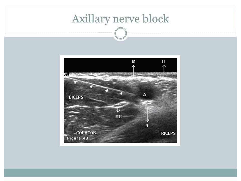 Axillary nerve block
