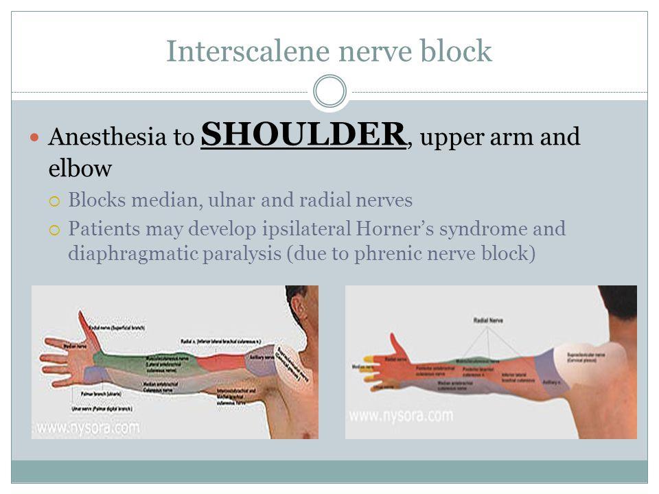 Interscalene nerve block