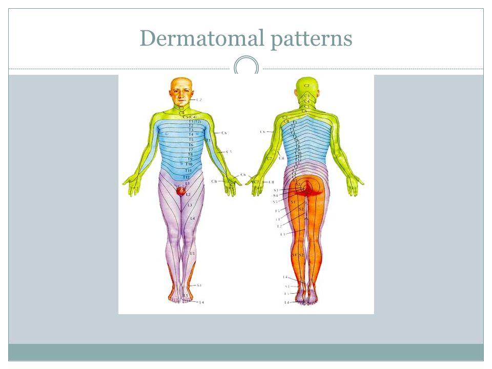 Dermatomal patterns