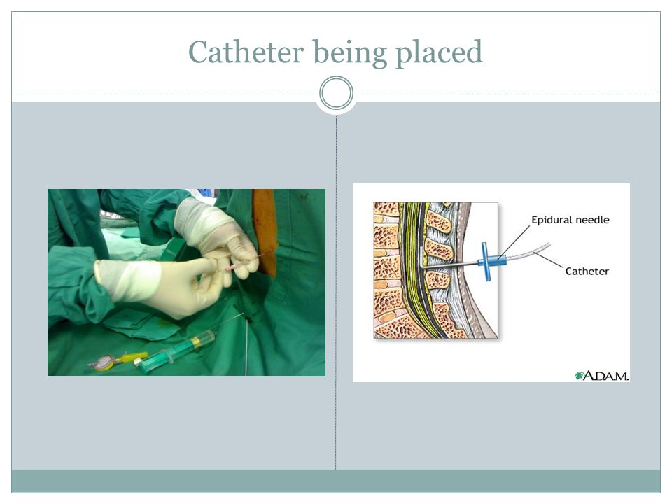 Catheter being placed