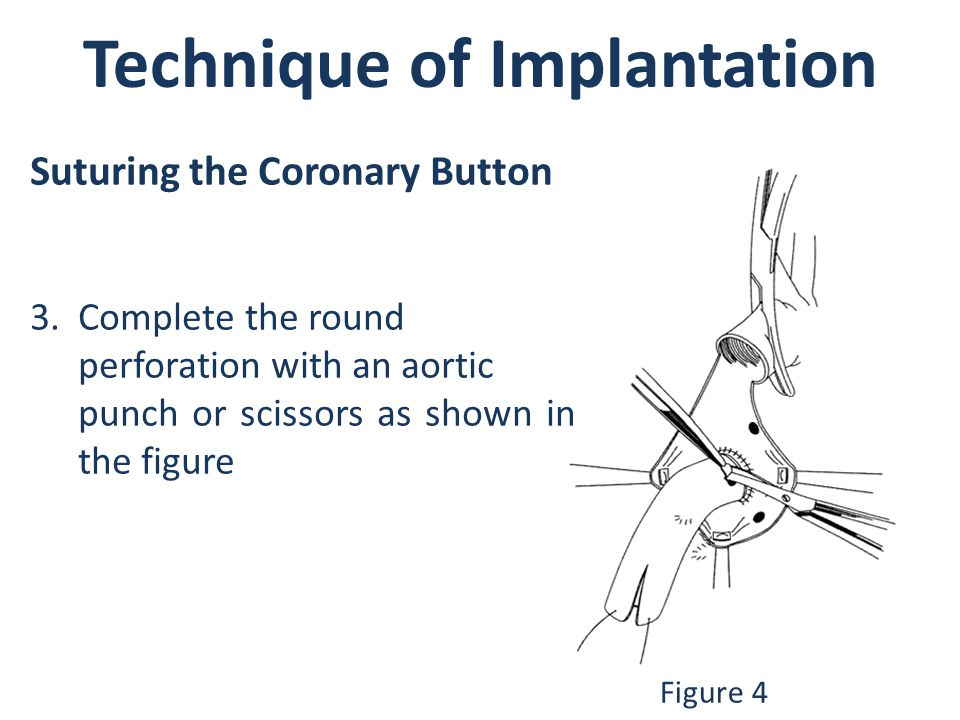 Technique of Implantation
