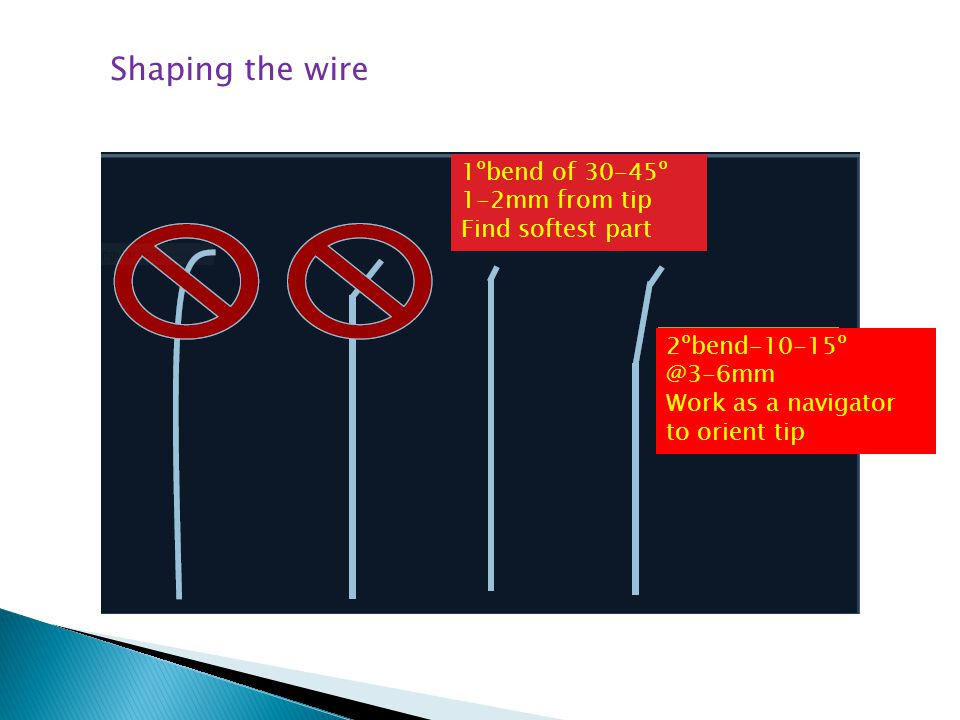 Shaping the wire 1ºbend of 30-45º 1-2mm from tip Find softest part