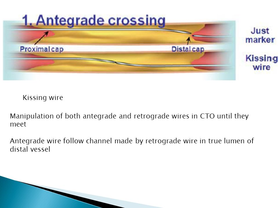 Kissing wire Manipulation of both antegrade and retrograde wires in CTO until they meet.