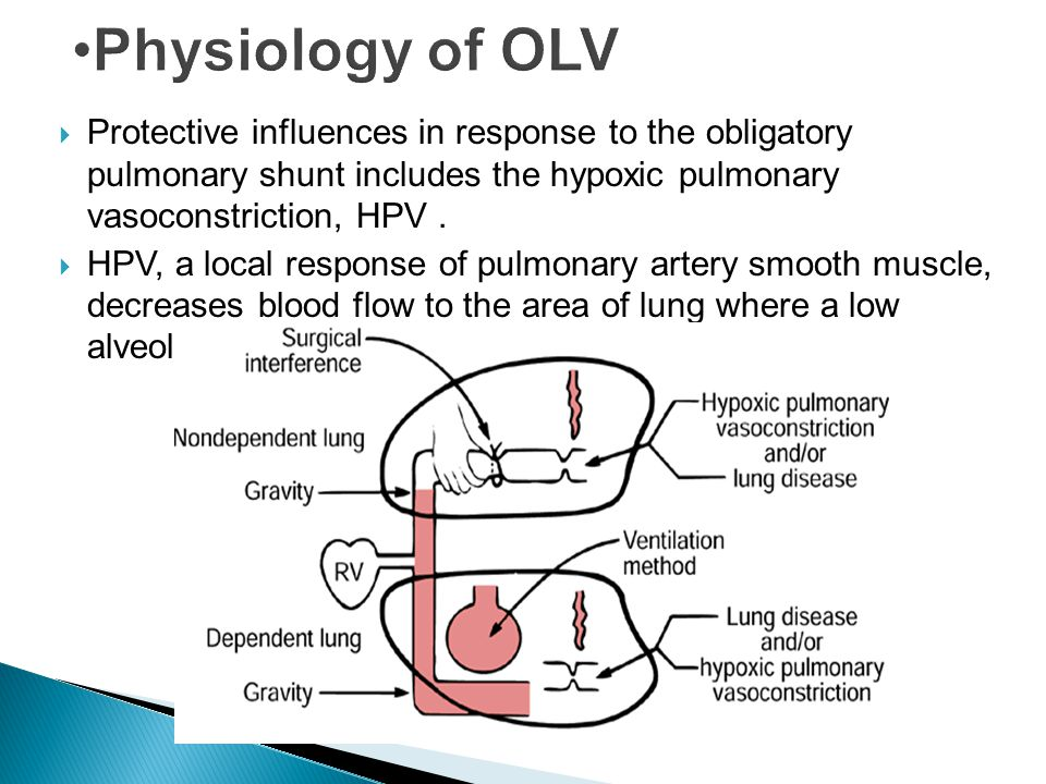 Physiology of OLV Protective influences in response to the obligatory pulmonary shunt includes the hypoxic pulmonary vasoconstriction, HPV .