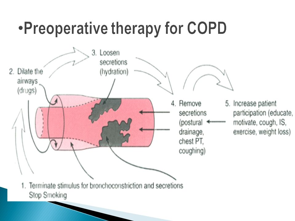 Preoperative therapy for COPD