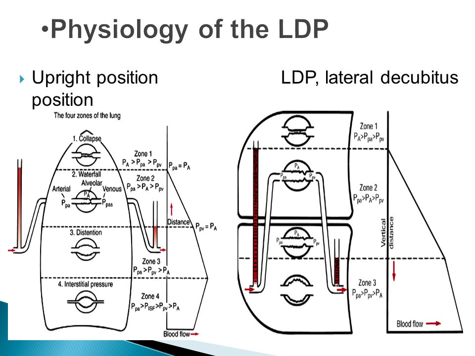 Physiology of the LDP Upright position LDP, lateral decubitus position