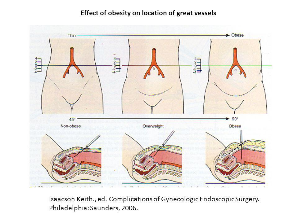 Effect of obesity on location of great vessels