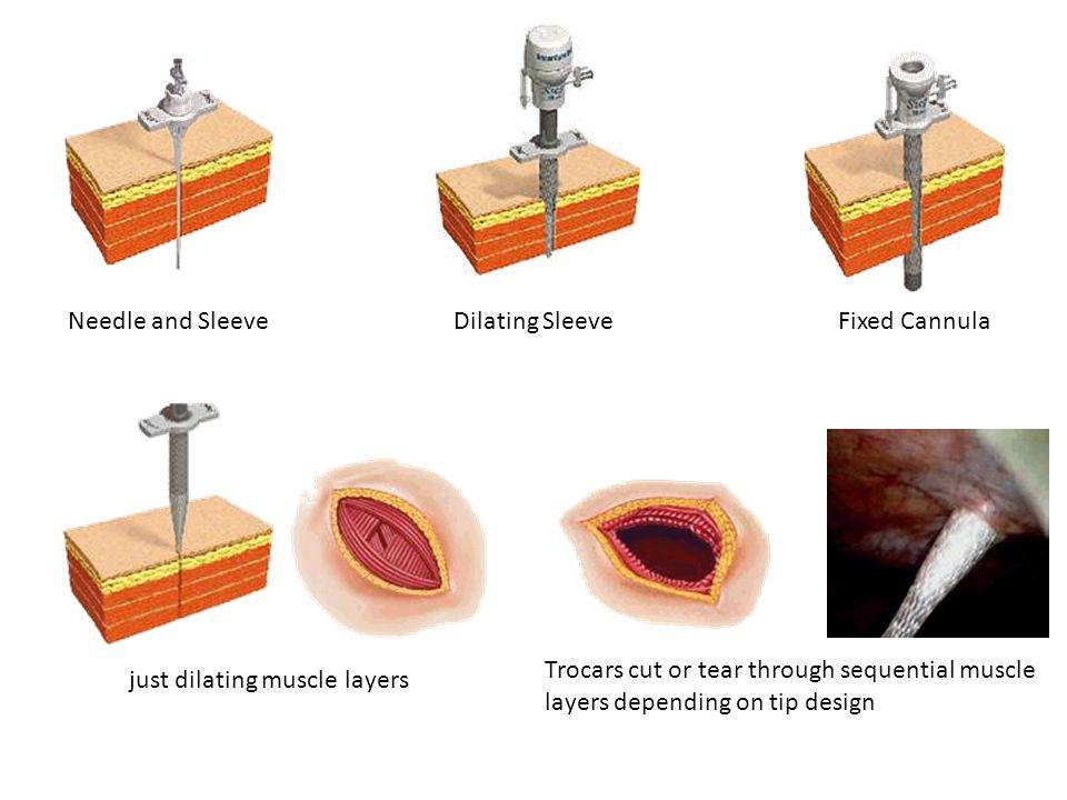 Needle and Sleeve Dilating Sleeve. Fixed Cannula. Trocars cut or tear through sequential muscle layers depending on tip design.