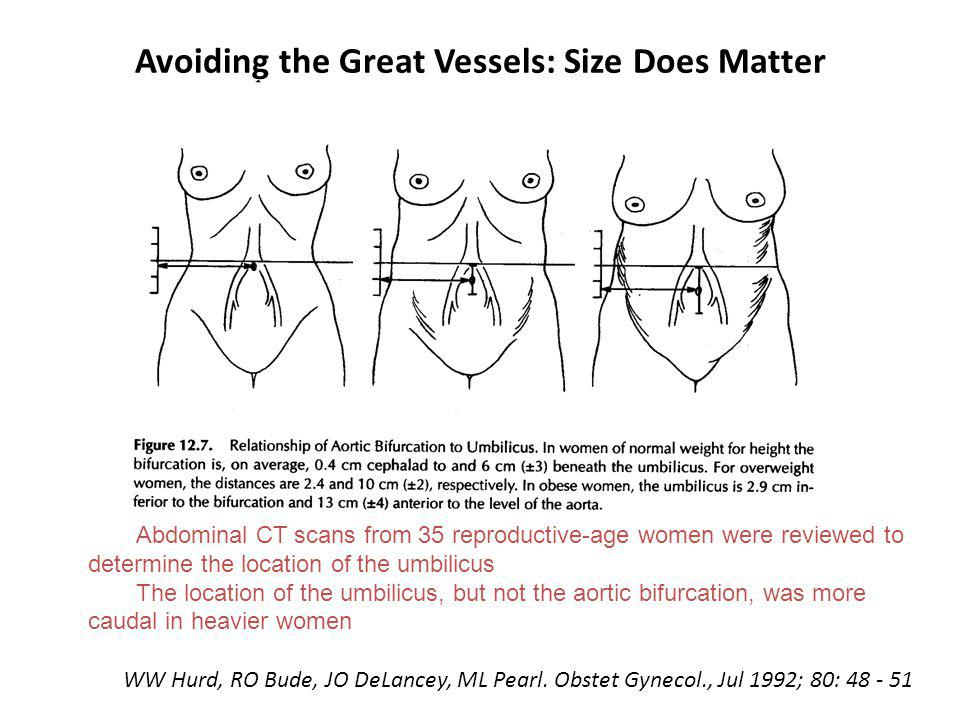 Avoiding the Great Vessels: Size Does Matter