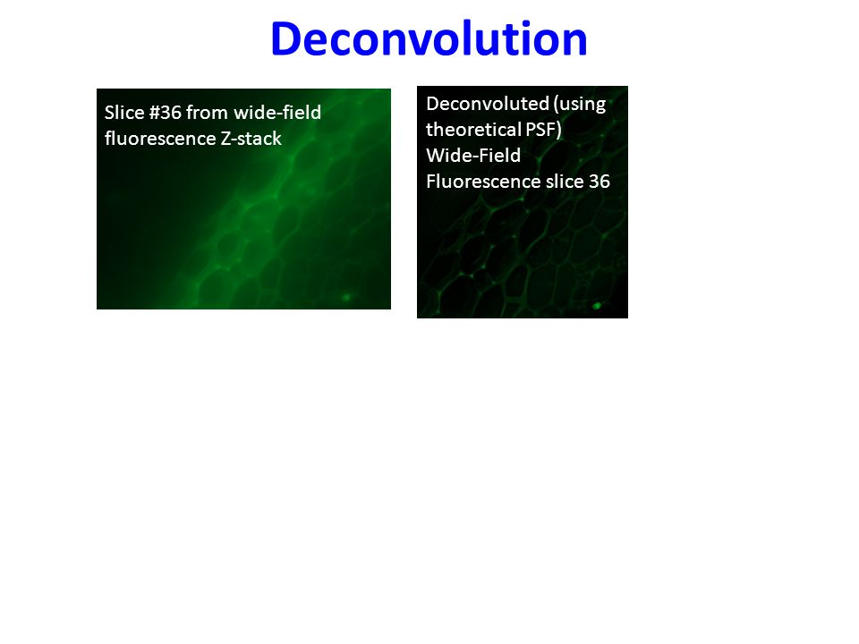 Deconvolution Slice #36 from wide-field fluorescence Z-stack. Deconvoluted (using theoretical PSF) Wide-Field Fluorescence slice 36.