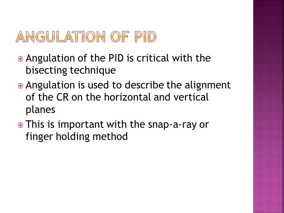 Angulation of PID Angulation of the PID is critical with the bisecting technique.