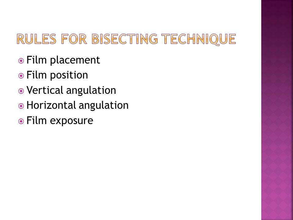 Rules for bisecting technique