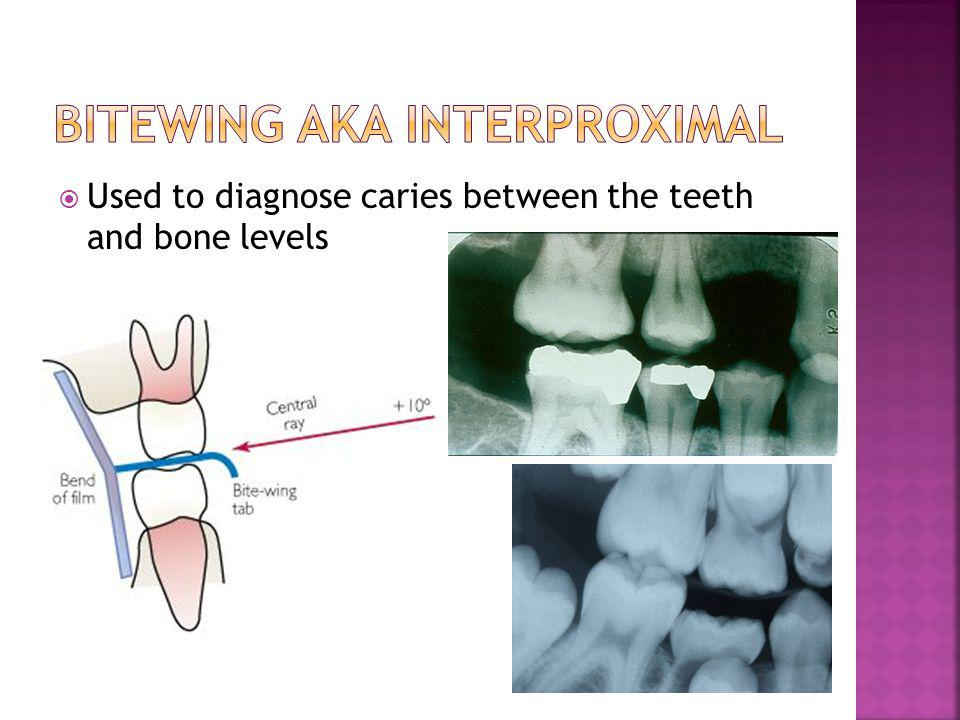 Bitewing aka Interproximal