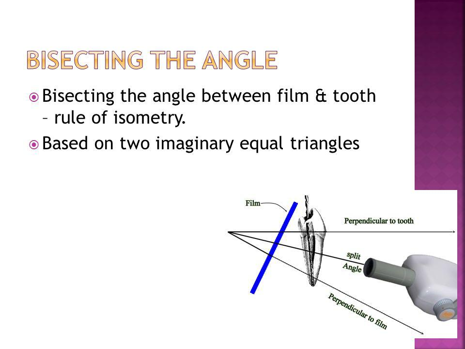 Bisecting the Angle Bisecting the angle between film & tooth – rule of isometry.