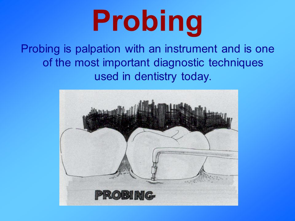 Probing Probing is palpation with an instrument and is one of the most important diagnostic techniques used in dentistry today.