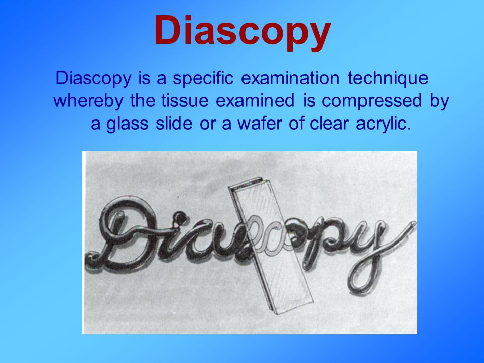 Diascopy Diascopy is a specific examination technique whereby the tissue examined is compressed by a glass slide or a wafer of clear acrylic.