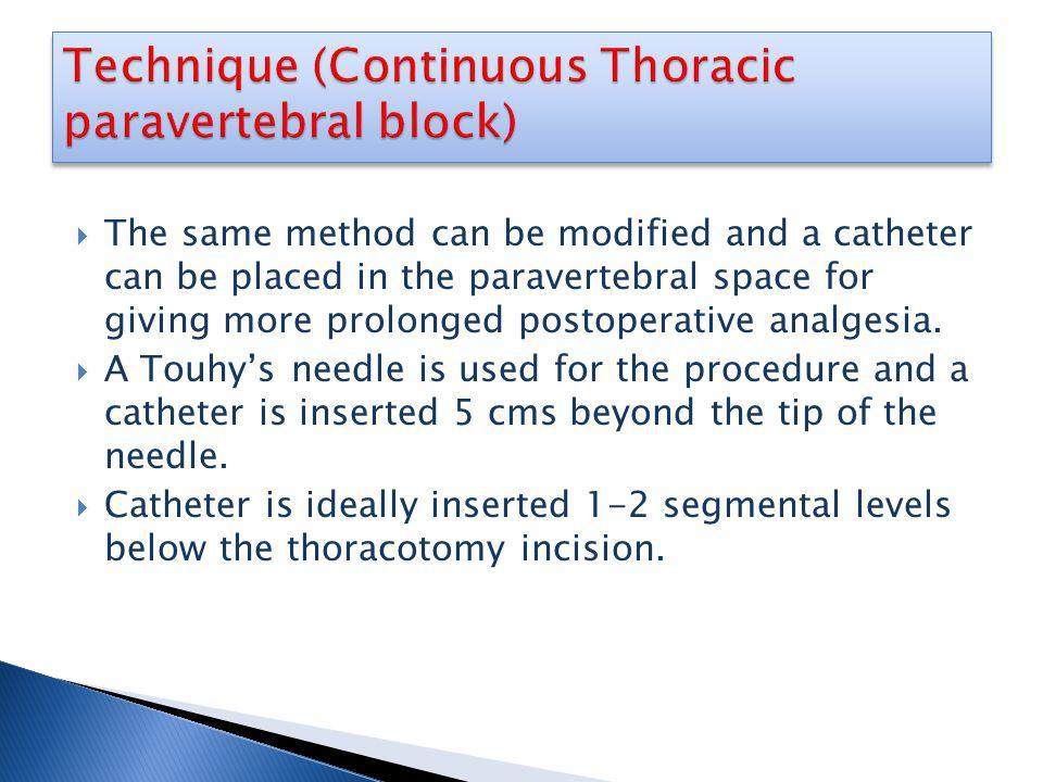 Technique (Continuous Thoracic paravertebral block)