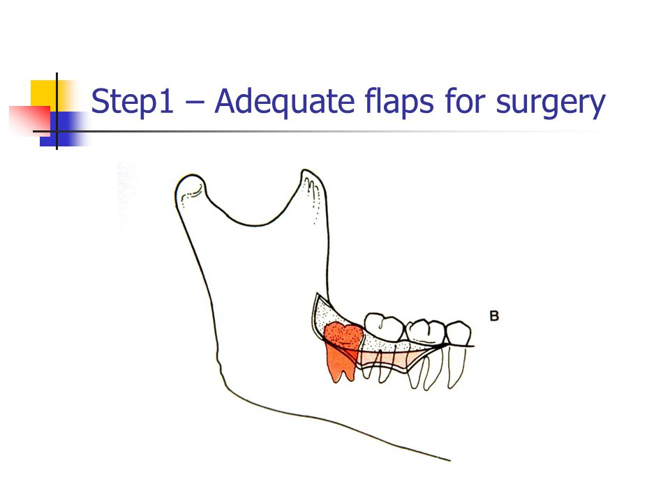 Step1 – Adequate flaps for surgery