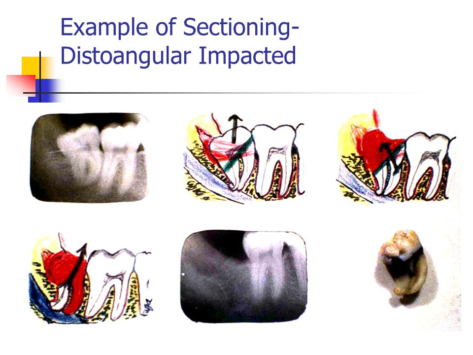 Example of Sectioning- Distoangular Impacted