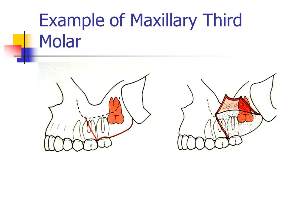 Maxillary third molar anatomy 9051496 - follow4more.info