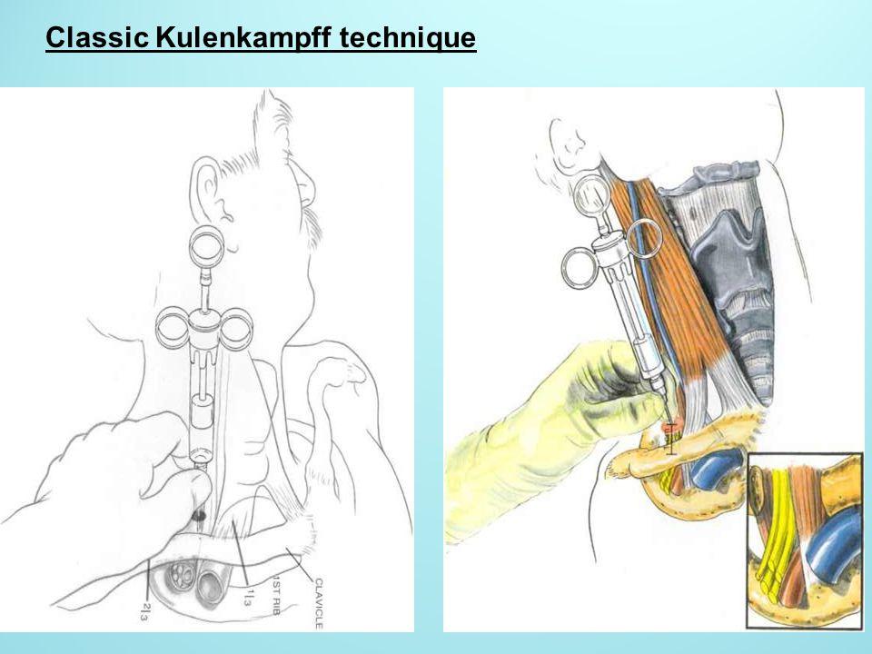 Classic Kulenkampff technique