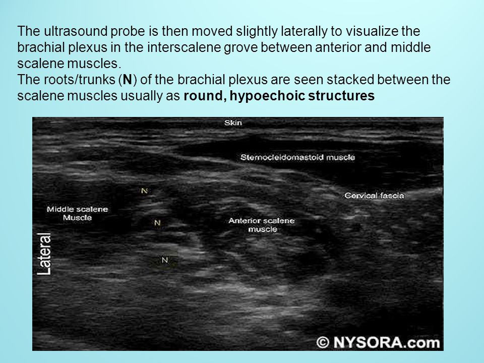 The ultrasound probe is then moved slightly laterally to visualize the brachial plexus in the interscalene grove between anterior and middle scalene muscles.