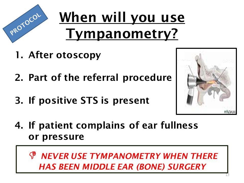 When will you use Tympanometry