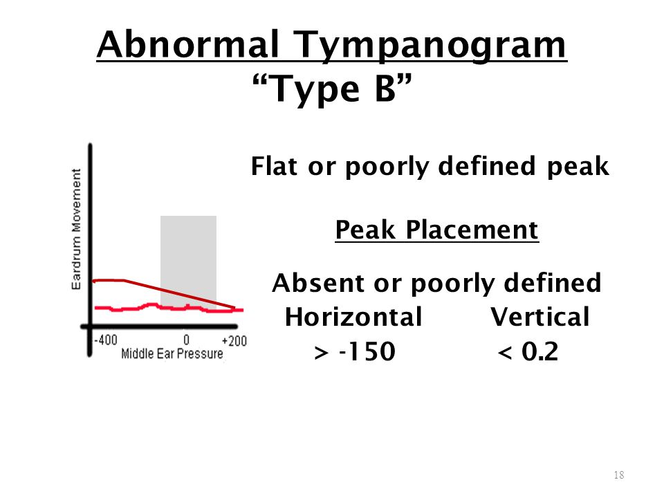 Abnormal Tympanogram Type B