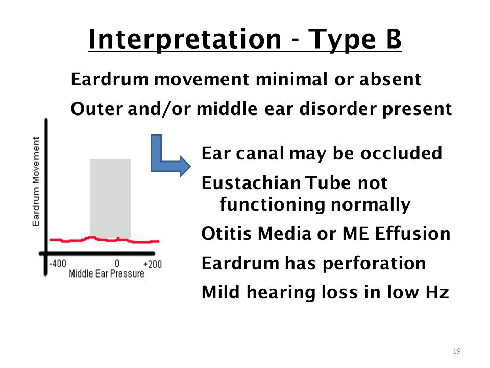 Interpretation - Type B