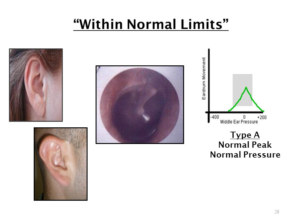 Within Normal Limits